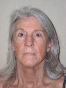 Before-Eyelids, Face and Neck Lift