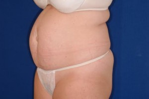 Before-Tummy Tuck (Abdominoplasty)