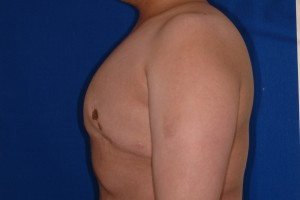 After-16 year old boy with severe gynecomastia