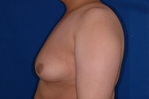 Before-16 year old boy with severe gynecomastia