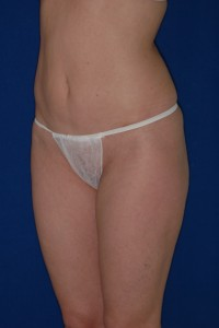 After-Mini-Tummy Tuck and Ultrasonic Liposuction of flanks and thighs