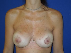 After-Previous implant surgery performed in Colombia. Corrective surgery by Dr. Perez with release of scar tissue capsule, re-shaping the implant pockets, re-positioning the nipple/areolas and replacement with new American silicone gel implants. The after picture show the patient on just Day #3!