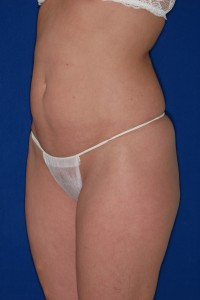 Before-Mini-Tummy Tuck and Ultrasonic Liposuction of flanks and thighs