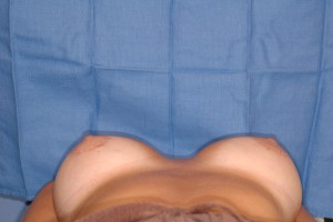 After-Dr. Perez often corrects surgery performed by other surgeons. Here, a patient had breast augmentation by another surgeon resulting in a very wide gap in the chest. The patient referred to herself as \