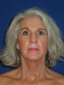 After-Eyelids, Face and Neck Lift