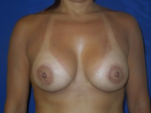 After-Silicone Gel Breast Augmentation with upper arc (only) breast lift