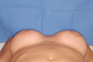 After-Original surgery performed by another surgeon. The before shows breast implants rolling into the patient\'s armpits. A very bad beach look. After corrective surgery by Dr. Perez. Implants exchanged and pockets reshaped.