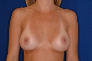 Before-Dr. Perez often corrects surgery performed by other surgeons. Here, a patient had breast augmentation by another surgeon resulting in a very wide gap in the chest. The patient referred to herself as \
