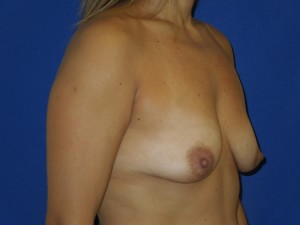 Before-Silicone Gel Breast Augmentation with upper arc (only) breast lift
