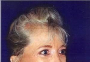 After-Upper and Lower Eyelid Rejuvenation