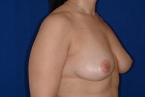 After-The Anchor Breast Lift