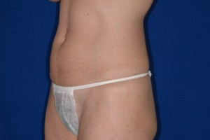 Before-Mini-Tummy Tuck