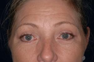 After-Eyelid Tuck