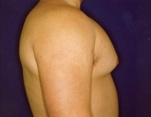 Before-Ultrasonic Lipoplasty (UAL) alone