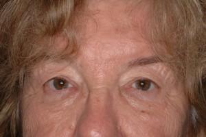 Before-Eyelid Tuck
