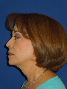 After-Upper and Lower Eyelids, Face and Neck lift