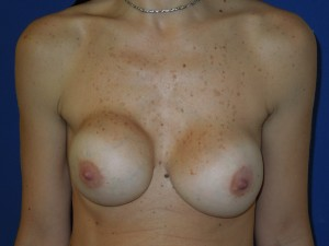 Before-Previous implant surgery performed in Colombia. Corrective surgery by Dr. Perez with release of scar tissue capsule, re-shaping the implant pockets, re-positioning the nipple/areolas and replacement with new American silicone gel implants. The after picture show the patient on just Day #3!