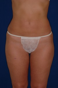After-Ultrasonic Liposuction of Tummy and thighs