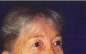 Before-Upper and Lower Eyelid Rejuvenation