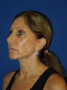 After-Ultrasonic Necklift only