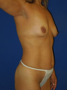 Before-Silicone Gel Breast Augmentation with upper arc (only) breast lift and mini-tummy tuck