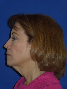 Before-Upper and Lower Eyelids, Face and Neck lift