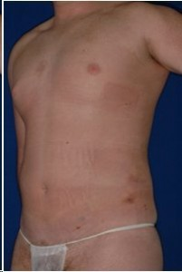 After-Ultrasonic Lipoplasty (UAL) of the male breast and abdomen. Before and One day after!