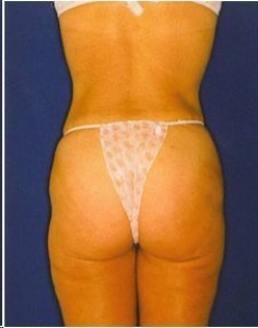 After-Ultrasonic Lipoplasty of the flanks, back and thighs