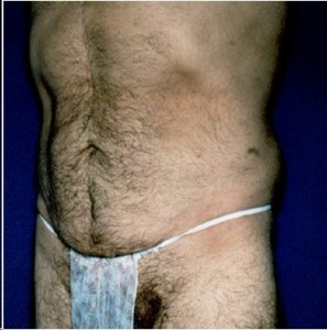 After-Ultrasonic Lipoplasty (UAL) of the flanks and abdomen.