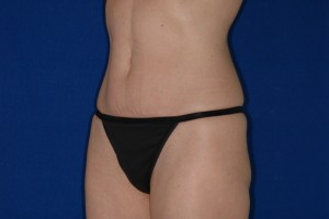 After-Mini-Tummy Tuck