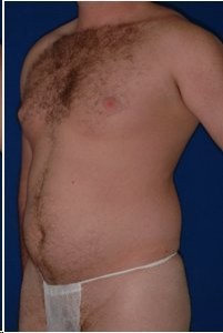 Before-Ultrasonic Lipoplasty (UAL) of the male breast and abdomen. Before and One day after!