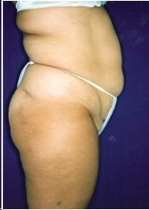 Before-Tummy tuck and Ultrasonic Lipoplasty (UAL) of the flanks and back.