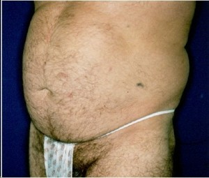 Before-Ultrasonic Lipoplasty (UAL) of the flanks and abdomen.