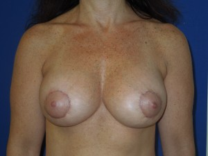 After-A limited scar breast lift using the peri-areolar technique with implants. This patient was spared the common anchor scar breast lift.