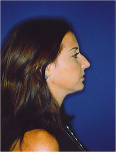 Before-Nose Reshaping