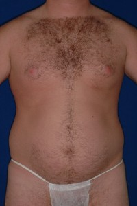 Before-Ultrasonic Lipoplasty (UAL) alone of the breasts and abdomen. One day after!