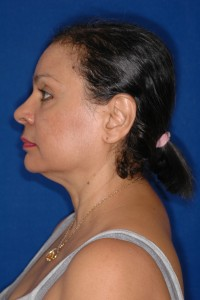 Before-The Unique Ultrasonic Necklift, a 30-minute option for facial rejuvenation