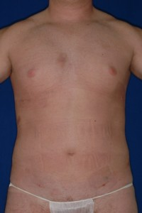 After-Ultrasonic Lipoplasty (UAL) alone of the breasts and abdomen. One day after!