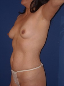 Before-Breast Augmentation and Tummy Tuck