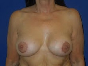 After-Limited-scar, periareolar (Benelli) breast lift with breast implants. This patient was able to avoid the common \
