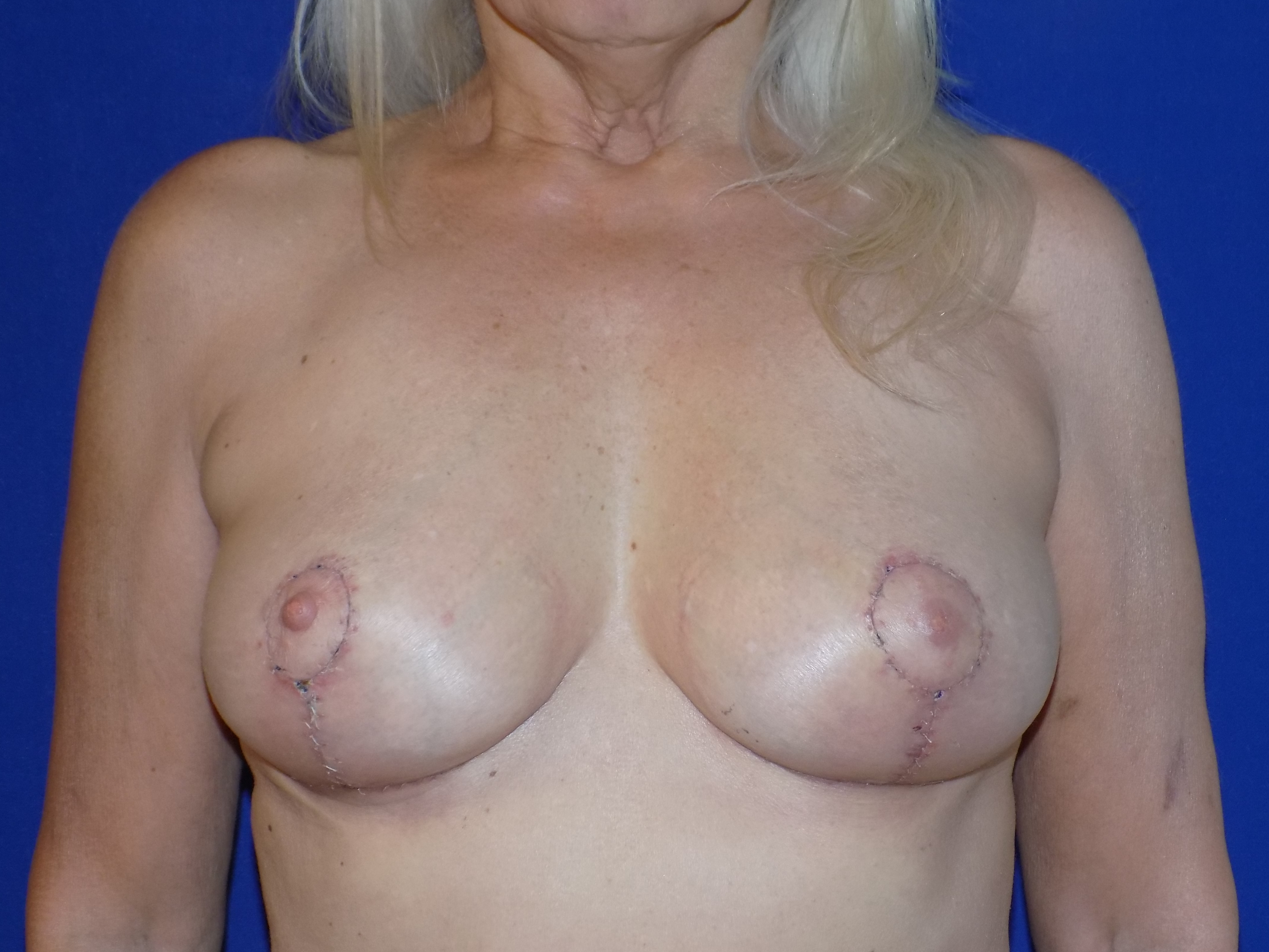After-Breast Implant Remove and Lift