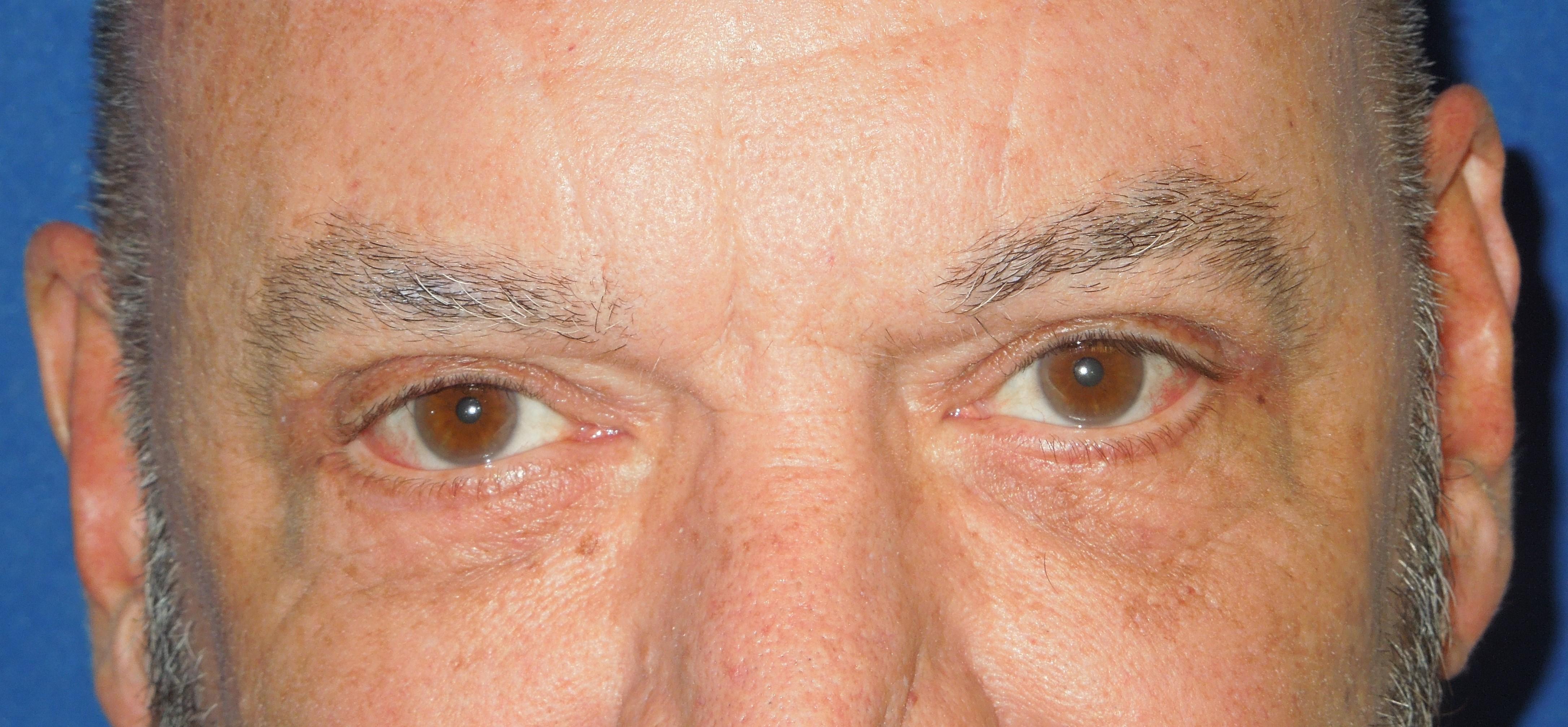 After-Blepharoplasty