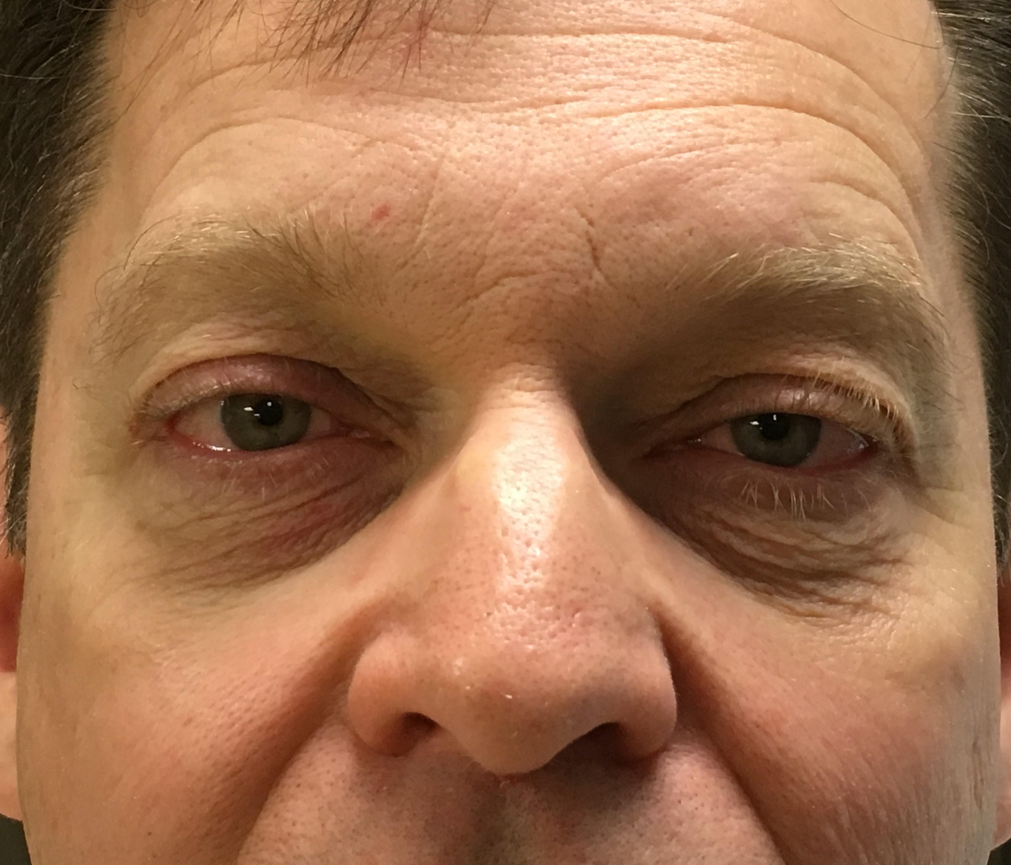 Before-Blepharoplasty