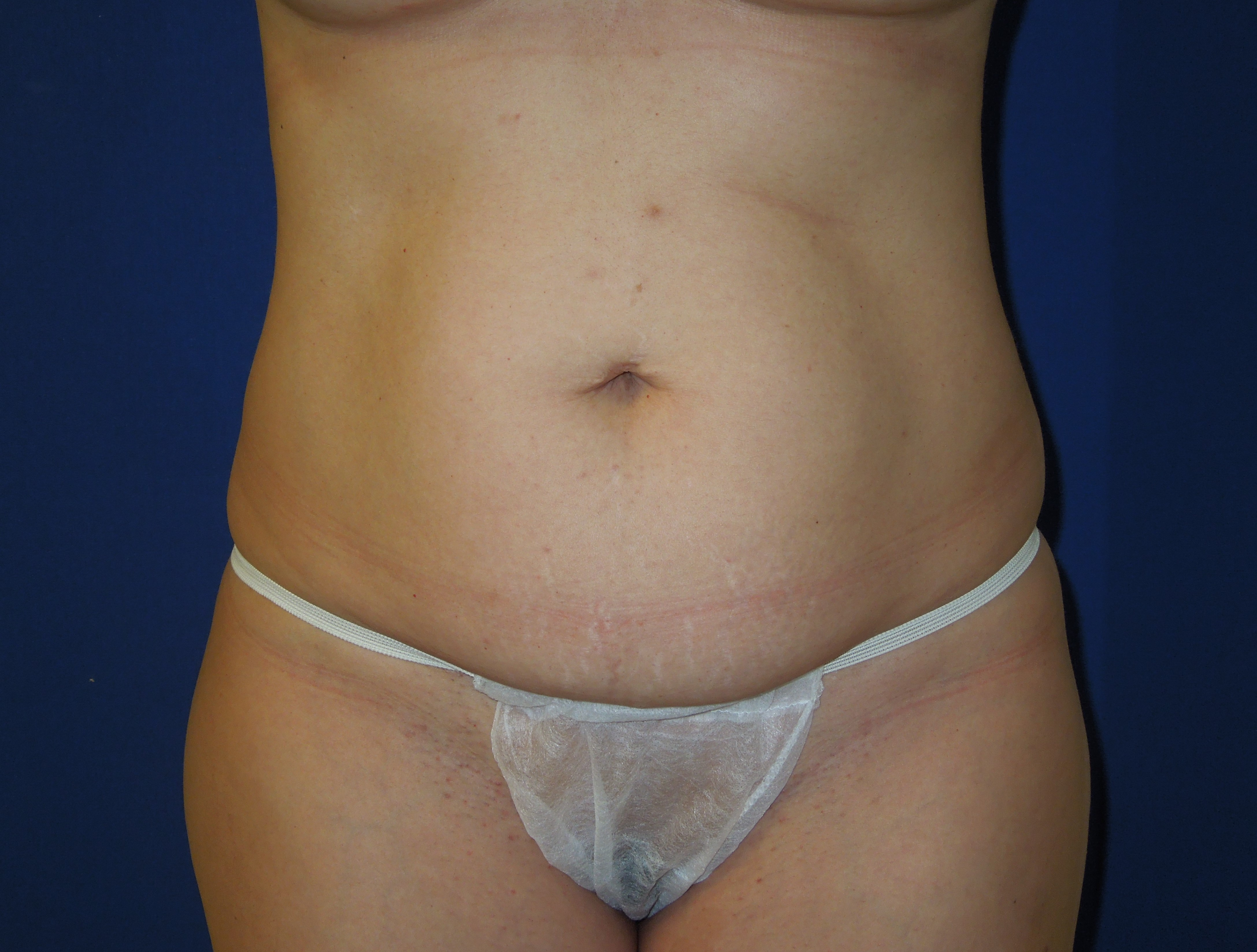 Before-Mini Tummy Tuck